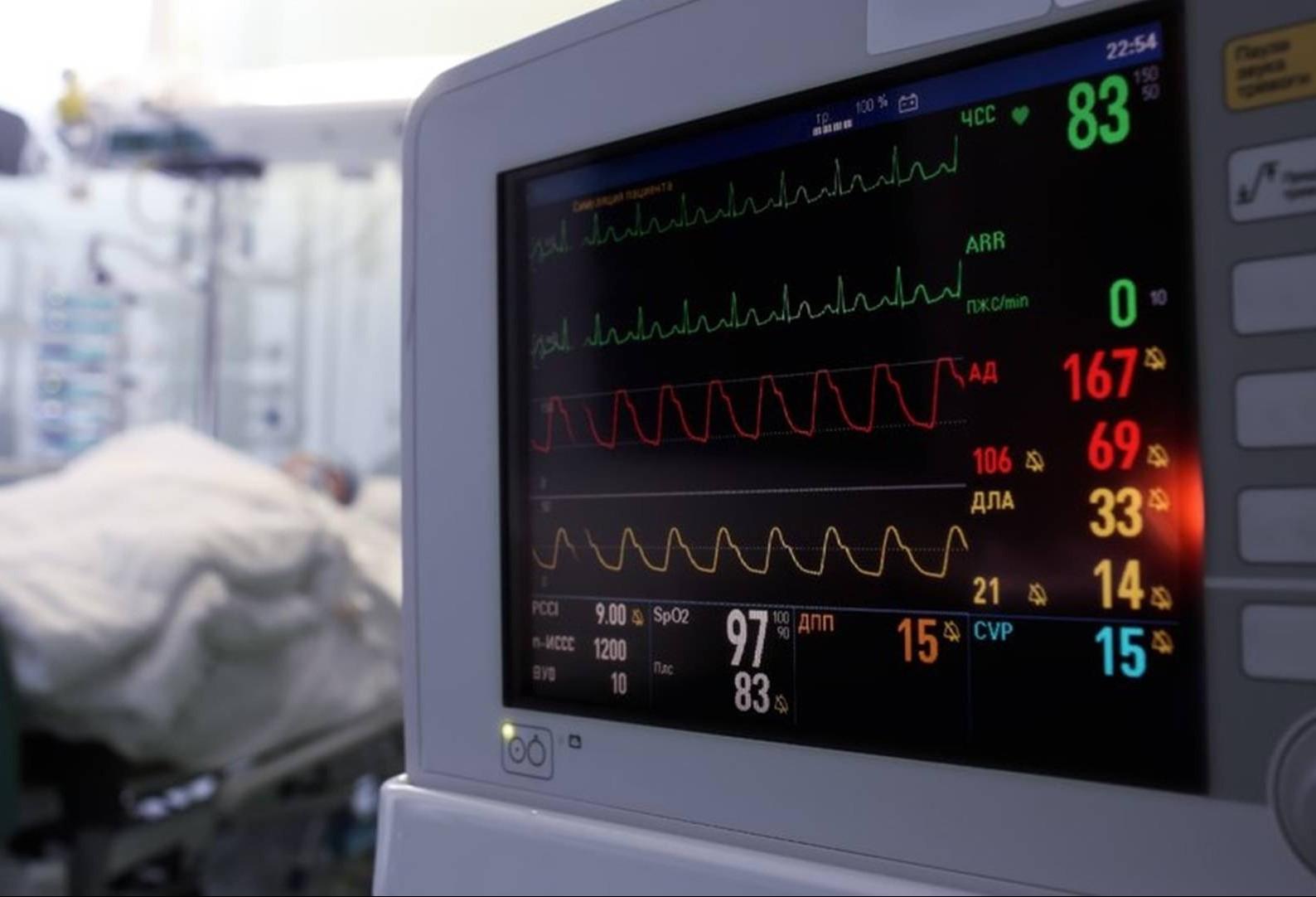 Escola de Saúde Pública abre inscrições para o curso de manejo prático de ventilação mecânica